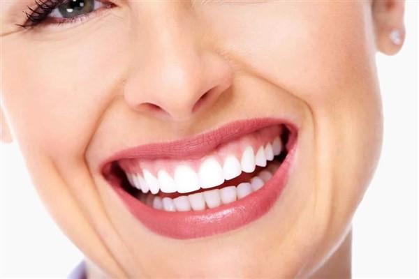 Gülerken diş etinin fazla görünmesi gülüşü engelliyor