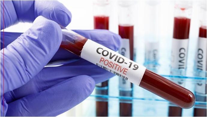 Korona virüs son rakamları açıklandı!
