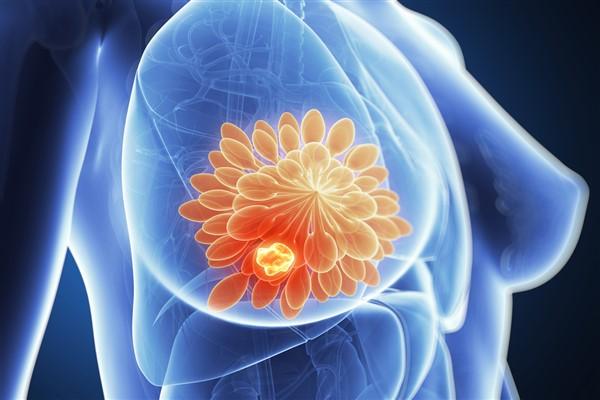 Meme kanseri tedavisinde yaşama katkı sağlayan yenilikler